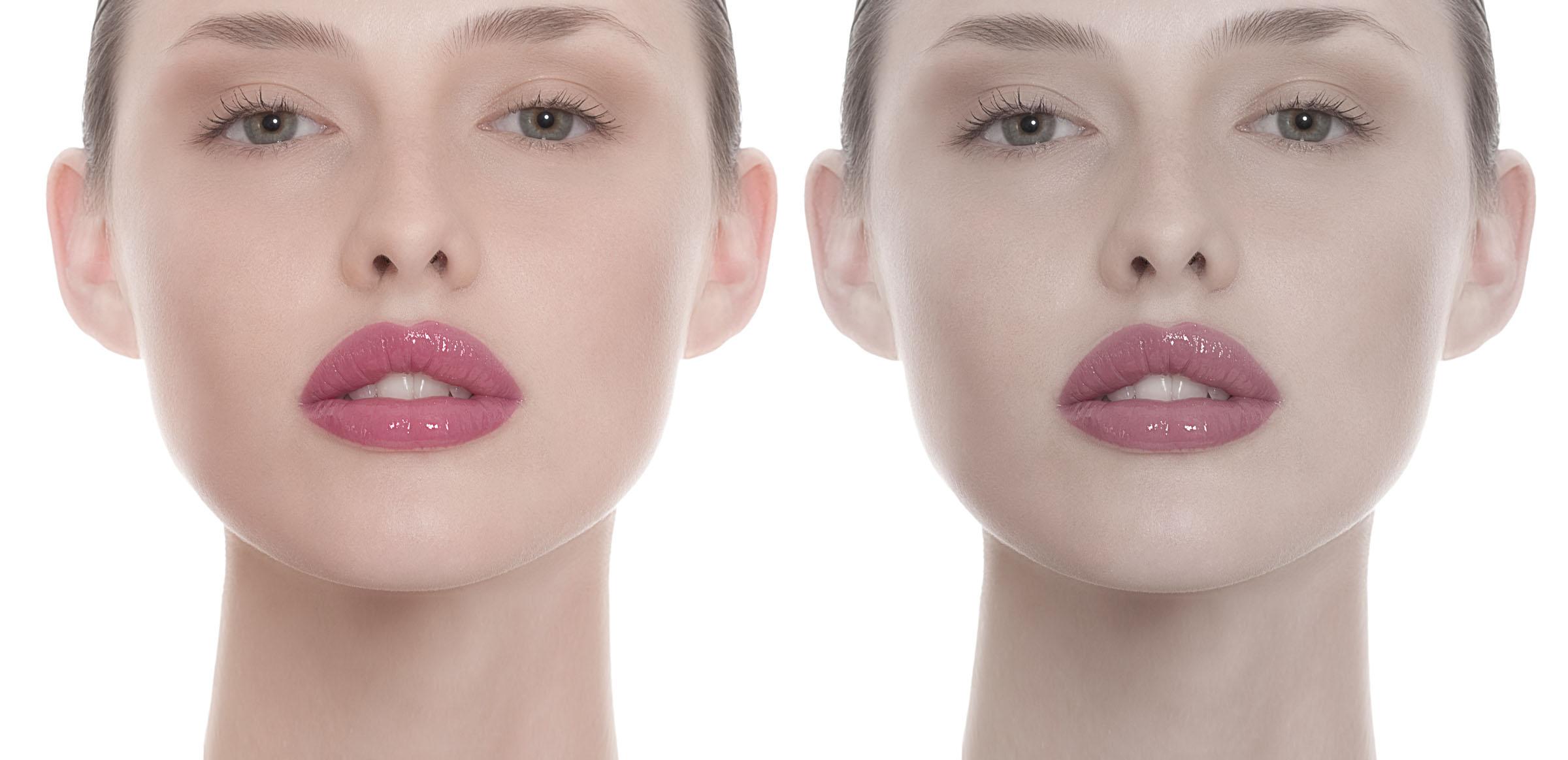 Beauty Doppel 4 a